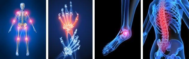 Очаги поражения артрита, артроза